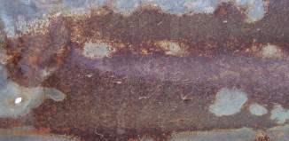 פסוריאזיס- סיפור מקרה