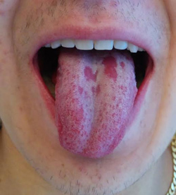 חום בדם במחלת קרוהן